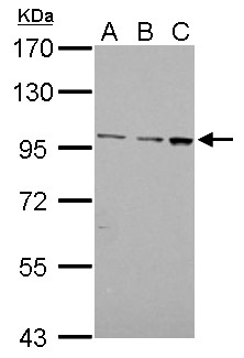 EMR1 antibody [C2C3], C-term detects EMR1 protein by Western blot analysis. A. 30 ug Jurkat whole cell lysate/extract. B. 30 ug Raji whole cell lysate/extract. C. 30 ug K562 whole cell lysate/extract. 7.5 % SDS-PAGE. EMR1 antibody [C2C3], C-term dilution:1:1000