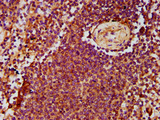 Immunohistochemistry Dilution at 1:500 and staining in paraffin-embedded human spleen tissue performed on a Leica BondTM system. After dewaxing and hydration, antigen retrieval was mediated by high pressure in a citrate buffer (pH 6.0). Section was blocked with 10% normal Goat serum 30min at RT. Then primary antibody (1% BSA) was incubated at 4°C overnight. The primary is detected by a biotinylated Secondary antibody and visualized using an HRP conjugated SP system.