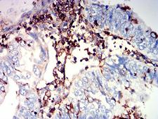 ADGRE5 / CD97 Antibody - Immunohistochemical analysis of paraffin-embedded endometrial cancer tissues using CD97 mouse mAb with DAB staining.