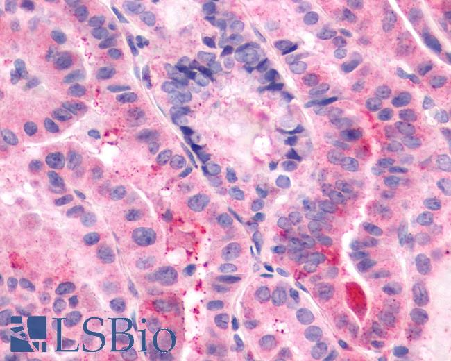 Anti-CD97 antibody IHC of human Thyroid, Papillary Carcinoma. Immunohistochemistry of formalin-fixed, paraffin-embedded tissue after heat-induced antigen retrieval.