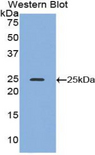 Western blot of recombinant ADH1A / Alcohol Dehydrogenase.  This image was taken for the unconjugated form of this product. Other forms have not been tested.