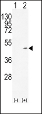 Western blot of ADH1C (arrow) using rabbit polyclonal ADH1C Antibody. 293 cell lysates (2 ug/lane) either nontransfected (Lane 1) or transiently transfected (Lane 2) with the ADH1C gene.