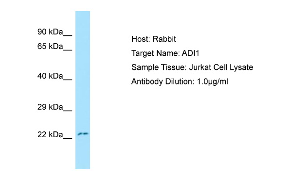 ADI1 / ARD Antibody -  This image was taken for the unconjugated form of this product. Other forms have not been tested.
