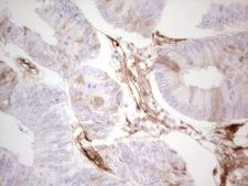 Adiponectin Antibody - IHC of paraffin-embedded Adenocarcinoma of Human colon tissue using anti-ADIPOQ mouse monoclonal antibody. (Heat-induced epitope retrieval by 1 mM EDTA in 10mM Tris, pH8.5, 120°C for 3min).