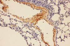 Adiponectin Antibody - Adiponectin antibody. IHC(P): Mouse Lung Tissue.