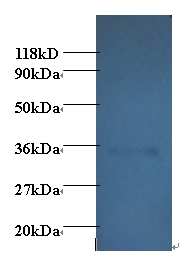 Western blot of Adiponectin antibody at 2 ug/ml + EC109 whole cell lysate at 20 ug. Secondary: Goat polyclonal to Rabbit IgG at 1:15000 dilution. Predicted band size:27 kDa. Observed band size: 35 kDa.  This image was taken for the unconjugated form of this product. Other forms have not been tested.