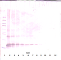 Anti-Human gAcrp30/Adipolean Western Blot Reduced