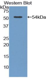 ADIPOR2 Antibody - Western blot of recombinant ADIPOR2.  This image was taken for the unconjugated form of this product. Other forms have not been tested.