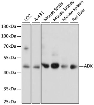 ADK / Adenosine Kinase Antibody - Western blot analysis of extracts of various cell lines, using ADK antibody at 1:1000 dilution. The secondary antibody used was an HRP Goat Anti-Rabbit IgG (H+L) at 1:10000 dilution. Lysates were loaded 25ug per lane and 3% nonfat dry milk in TBST was used for blocking. An ECL Kit was used for detection and the exposure time was 5s.