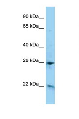 ADM / Adrenomedullin antibody Western blot of HepG2 Cell lysate. Antibody concentration 1 ug/ml.  This image was taken for the unconjugated form of this product. Other forms have not been tested.