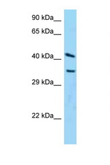 ADPRH antibody Western blot of HeLa Cell lysate. Antibody concentration 1 ug/ml.  This image was taken for the unconjugated form of this product. Other forms have not been tested.