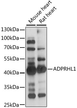 ADPRHL1 Antibody - Western blot analysis of extracts of various cell lines, using ADPRHL1 antibody at 1:1000 dilution. The secondary antibody used was an HRP Goat Anti-Rabbit IgG (H+L) at 1:10000 dilution. Lysates were loaded 25ug per lane and 3% nonfat dry milk in TBST was used for blocking. An ECL Kit was used for detection and the exposure time was 3s.