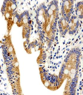 ADRA1D Antibody - Immunohistochemical of paraffin-embedded H. small intestine section using ADRA1D Antibody. Antibody was diluted at 1:100 dilution. A peroxidase-conjugated goat anti-rabbit IgG at 1:400 dilution was used as the secondary antibody, followed by DAB staining.