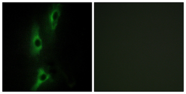 Immunofluorescence analysis of NIH/3T3 cells, using ADRB2 Antibody. The picture on the right is blocked with the synthesized peptide.