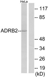 Western blot analysis of lysates from HeLa cells, using ADRB2 Antibody. The lane on the right is blocked with the synthesized peptide.