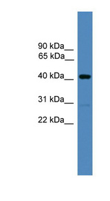 ADRM1 antibody Western blot of Placenta lysate. This image was taken for the unconjugated form of this product. Other forms have not been tested.