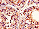 Immunohistochemistry of paraffin-embedded human testis tissue using ADRM1 Antibody at dilution of 1:100
