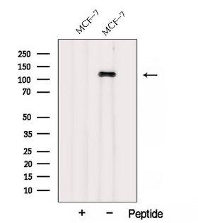 AFAP1 / AFAP Antibody - Western blot analysis of extracts of HepG2 cells using AFAP1 antibody. The lane on the left was treated with blocking peptide.