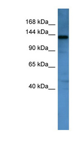 AFF1 / AF4 Antibody - AFF1 antibody Western blot of Mouse Kidney lysate. This image was taken for the unconjugated form of this product. Other forms have not been tested.
