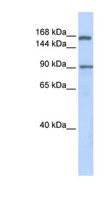 AFF2 antibody Western blot of Fetal Lung lysate. This image was taken for the unconjugated form of this product. Other forms have not been tested.