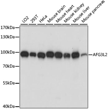 AFG3L2 Antibody - Western blot analysis of extracts of various cell lines, using AFG3L2 antibody at 1:1000 dilution. The secondary antibody used was an HRP Goat Anti-Rabbit IgG (H+L) at 1:10000 dilution. Lysates were loaded 25ug per lane and 3% nonfat dry milk in TBST was used for blocking. An ECL Kit was used for detection and the exposure time was 5s.