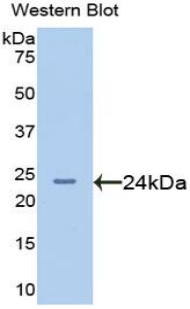 Western blot of recombinant AFM / Afamin.  This image was taken for the unconjugated form of this product. Other forms have not been tested.