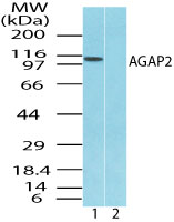 Western blot of AGAP2 in Jurkat cell lysate in the 1) absence and 2) presence of immunizing peptide using Peptide-affinity Purified Polyclonal Antibody to AGAP2 at 2.0 ug/ml. Goat anti-rabbit Ig HRP secondary antibody, and PicoTect ECL substrate solution, were used for this test.