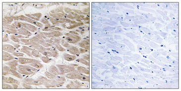 Immunohistochemistry analysis of paraffin-embedded human heart tissue, using CBCP2 Antibody. The picture on the right is blocked with the synthesized peptide.