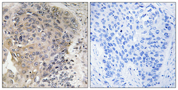 AGBL3 Antibody - Immunohistochemistry analysis of paraffin-embedded human lung carcinoma, using CBCP3 Antibody. The picture on the right is blocked with the synthesized peptide.