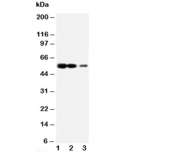 Western blot testing of RAGE antibody and Lane 1: recombinant human protein 10ng; 2: 5ng; 3: 2.5ng