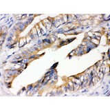RAGE antibody IHC-paraffin. IHC(P): Human Intestinal Cancer Tissue.