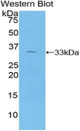 Western blot of recombinant AGER / RAGE.  This image was taken for the unconjugated form of this product. Other forms have not been tested.