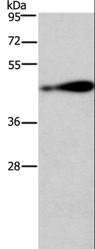 Western blot analysis of 231 cell, using AGER Polyclonal Antibody at dilution of 1:750.