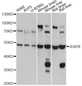 Western blot analysis of extracts of various cell lines, using AGER antibody at 1:1000 dilution. The secondary antibody used was an HRP Goat Anti-Rabbit IgG (H+L) at 1:10000 dilution. Lysates were loaded 25ug per lane and 3% nonfat dry milk in TBST was used for blocking. An ECL Kit was used for detection and the exposure time was 5s.