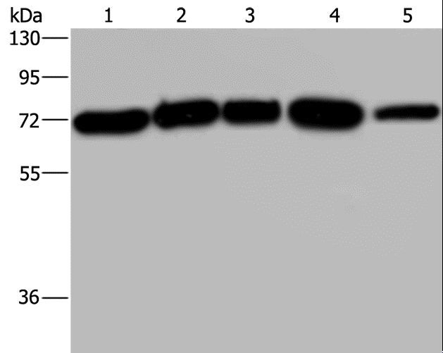 AGFG1 Antibody - Western blot analysis of A172, HeLa and 293T cell, K562 cell and human testis tissue, using AGFG1 Polyclonal Antibody at dilution of 1:533.