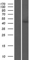AGK Protein - Western validation with an anti-DDK antibody * L: Control HEK293 lysate R: Over-expression lysate