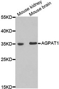 AGPAT1 Antibody - Western blot analysis of extracts of various cell lines.