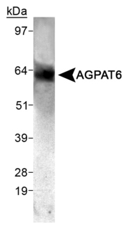 AGPAT6 Antibody - Detection of AGPAT6 in mouse skeletal muscle.  This image was taken for the unconjugated form of this product. Other forms have not been tested.