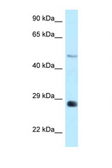 AGPAT9 antibody Western blot of Rat Brain lysate. Antibody concentration 1 ug/ml.  This image was taken for the unconjugated form of this product. Other forms have not been tested.