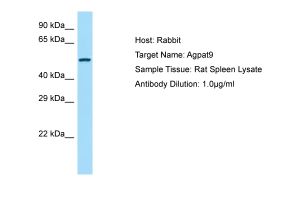 AGPAT9 / MAG1 Antibody -  This image was taken for the unconjugated form of this product. Other forms have not been tested.