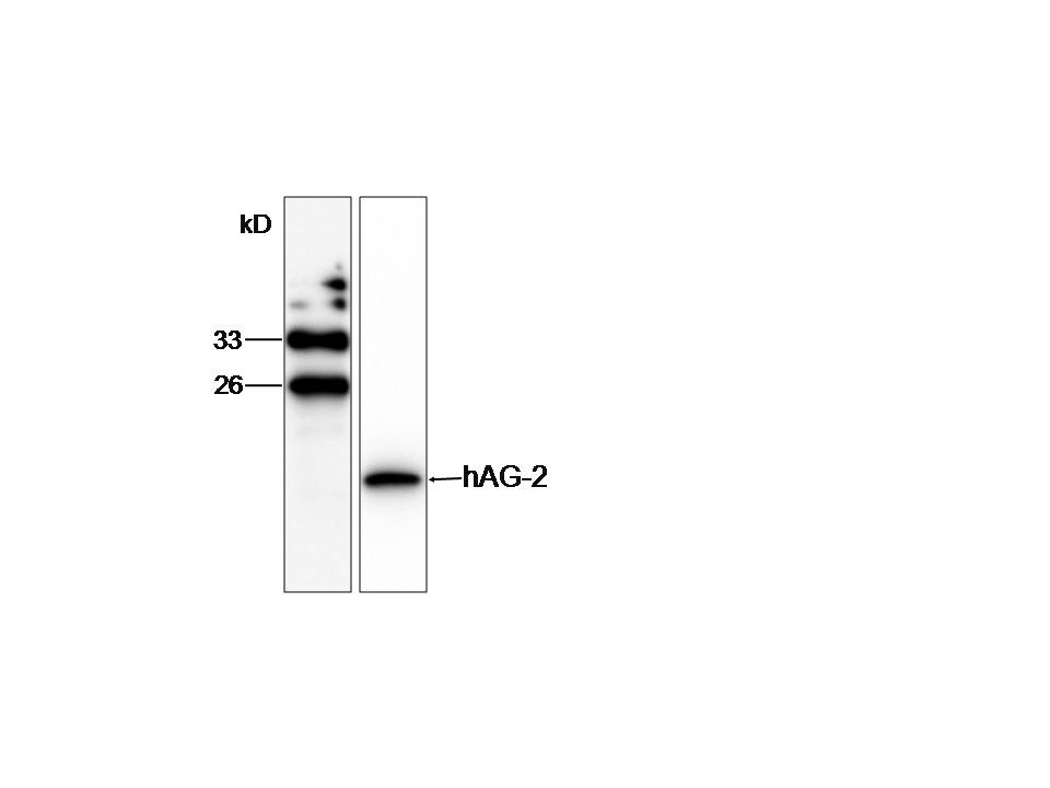 WB (1:1000) analysis of AGR2 expression in SW480 whole cell lysate with Anti-AGR2.