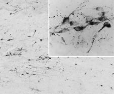 AGRP Antibody - Goat Anti-AGRP / Agouti-related protein Antibody (0.05µg/ml) staining of PFA-perfused cryosection of Human Hypothalamus. Antigen retrieval with citrate buffer pH 6 at 80C for 30min, HRP-staining with Ni-DAB after Biotin-SP-antigoat amplification. Data obtained by Prof. Erik Hrabovszky, Inst, Exp, Med., Budapest, Hungary.