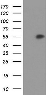 AGT / Angiotensinogen Antibody - HEK293T cells were transfected with the pCMV6-ENTRY control (Left lane) or pCMV6-ENTRY AGT (Right lane) cDNA for 48 hrs and lysed. Equivalent amounts of cell lysates (5 ug per lane) were separated by SDS-PAGE and immunoblotted with anti-AGT.