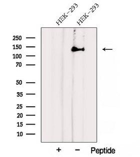 AHI1 Antibody - Western blot analysis of extracts of HEK293 cells using AHI1 antibody. The lane on the left was treated with blocking peptide.