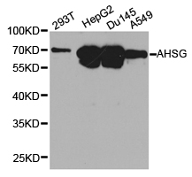 AHSG / Fetuin A Antibody - Western blot of extracts of various cell lines, using AHSG antibody.
