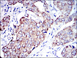 IHC of paraffin-embedded human breast cancer tissues using AIF mouse monoclonal antibody with DAB staining.
