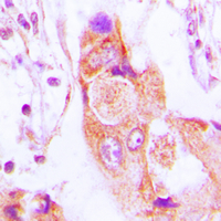 Immunohistochemical analysis of AIM2 staining in human lung cancer formalin fixed paraffin embedded tissue section. The section was pre-treated using heat mediated antigen retrieval with sodium citrate buffer (pH 6.0). The section was then incubated with the antibody at room temperature and detected using an HRP conjugated compact polymer system. DAB was used as the chromogen. The section was then counterstained with hematoxylin and mounted with DPX.