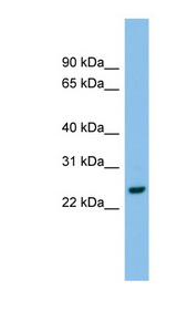 AK2 / Adenylate Kinase 2 Antibody - AK2 antibody Western blot of RPMI-8226 cell lysate. This image was taken for the unconjugated form of this product. Other forms have not been tested.