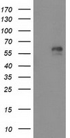 AK5 / Adenylate Kinase 5 Antibody - HEK293T cells were transfected with the pCMV6-ENTRY control (Left lane) or pCMV6-ENTRY AK5 (Right lane) cDNA for 48 hrs and lysed. Equivalent amounts of cell lysates (5 ug per lane) were separated by SDS-PAGE and immunoblotted with anti-AK5.