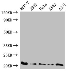 AK6 / Adenylate Kinase 6 Antibody - Western Blot Positive WB detected in:MCF-7 whole cell lysate,293T whole cell lysate,Hela whole cell lysate,K562 whole cell lysate,A431 whole cell lysate All Lanes: AK6 antibody at 0.59 ug/ml Secondary Goat polyclonal to rabbit IgG at 1/50000 dilution Predicted band size: 21,20kDa Observed band size: 20 kDa